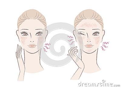 敏理性皮肤_敏感皮肤怎样改进_怎样判别敏理性皮肤