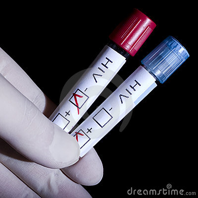 позитв ВИЧ отрицательный
