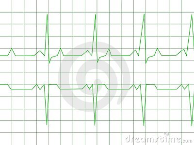normal heart rhythm royalty free stock images image 9819749