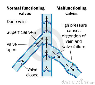 Normal and malfunctioning vein valves