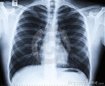 Normal thoracic x-ray image without any findings