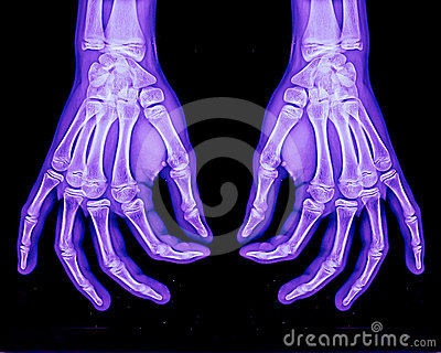 Normal xray of both hands