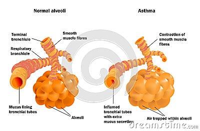 Normale de alveolen van de long en astma