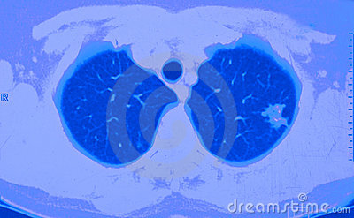 Nowotworu ct płuco