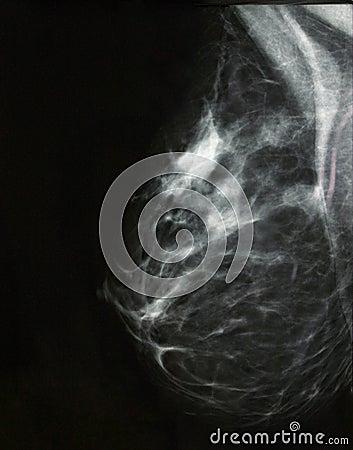 Nowotwór piersi