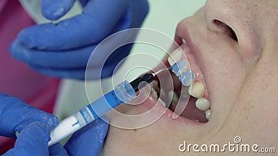 O dentista põe a base para colocar folheados dentais filme