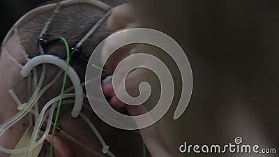 O doutor conecta os sensores eletrônicos à cabeça paciente do ` s Tecnologias médicas progressivas narc video estoque