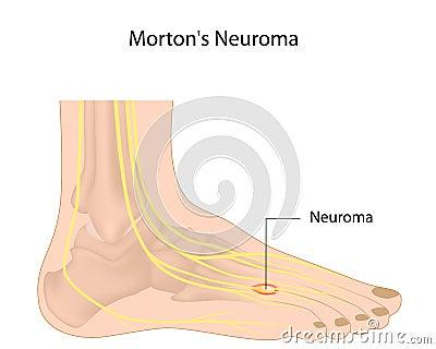 O neuroma de Morton