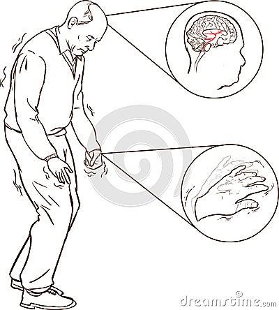Penyebab, Gejala dan Pengobatan Parkinson