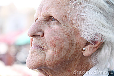 Old sun stained wrinkled skin