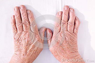 Old woman s hands geformed from rheumatoid arthritis
