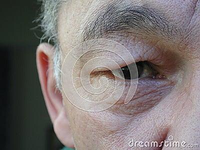 Oriental eye