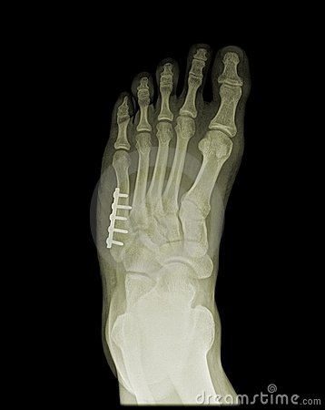 Orthopedic surgery of human foot on x-ray