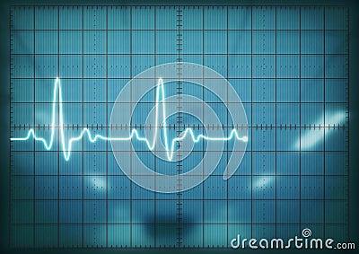 Oscilloscope screen showing heartbeat