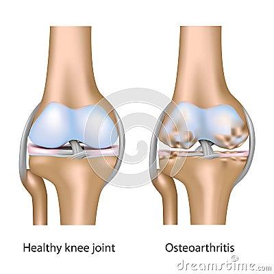 Osteoarthritis of knee joint