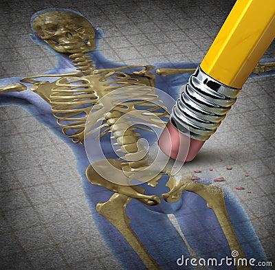 Osteoporose humana