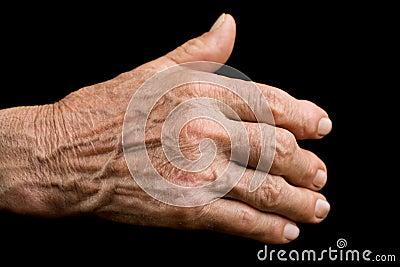 Oude hand met artritis