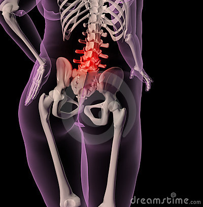 Overweight female skeleton with back pain