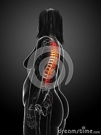 Overweight woman - backache