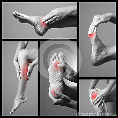 Free Pain In The Foot. Massage Of Female Feet. Sore On Woman Legs. Pain In The Human Body On A Gray Background. Collage Of Body Parts O Royalty Free Stock Image - 69016726
