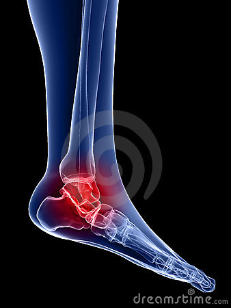 Painful ankle