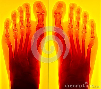 Painful foot Xray