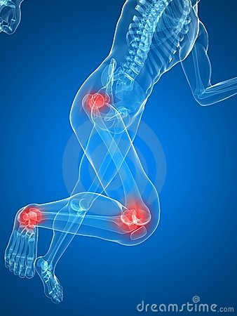 Free Painful Joints Royalty Free Stock Photography - 12902087