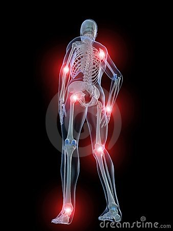 Free Painful Joints Royalty Free Stock Photos - 7750468