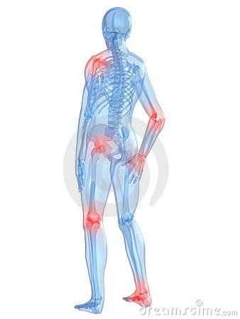 Free Painful Joints Royalty Free Stock Photo - 7750505