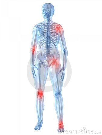 Free Painful Joints Stock Photos - 7750513