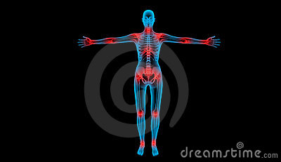 Painful joints x-ray body
