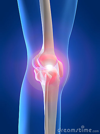 Free Painful Knee Royalty Free Stock Photography - 2462727