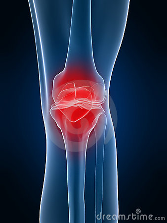 Free Painful Knee Stock Photos - 4155433