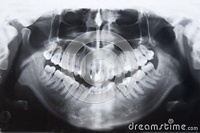 Panorama dos dentes
