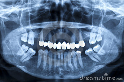 Panorama x-ray image of a human jaw