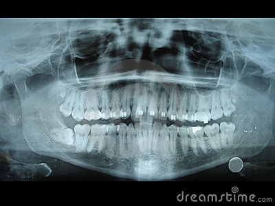 Panoramic dental radiology slide