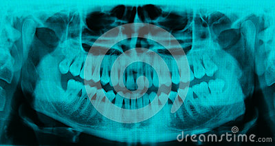 Panoramic dental X-ray - 31 teeth cyan color Stock Photo