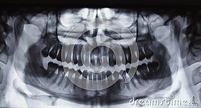 Panoramic dental Xray Stock Photo