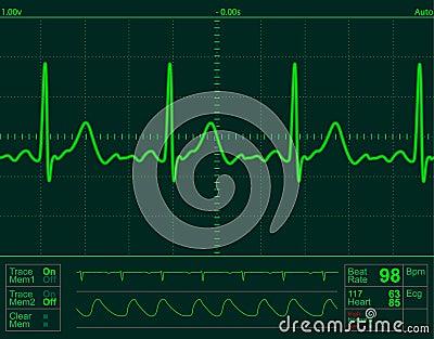 Pantalla de monitor de corazón