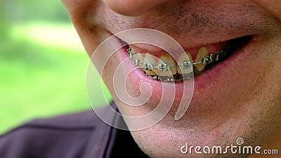 Parenthèses pour les dents jaunies Plan rapproché d'un type de sourire Les dents d'une personne de tabagisme Profondeur de zone d banque de vidéos