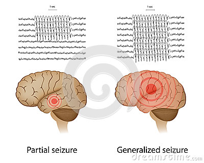 Partial and generalized epilepsy