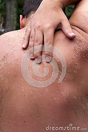 Free Peeling Sunburned Back Stock Photo - 16100360
