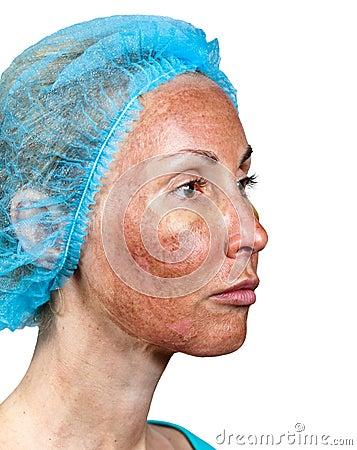 Peeling TCA.Cosmetology.