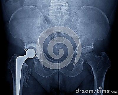 Pelvic x-ray