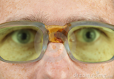 Person in old bad spectacles with poor eyesight
