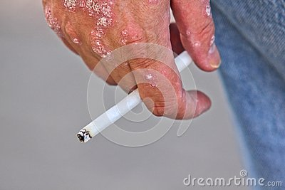 Person with psoriasis, smoking