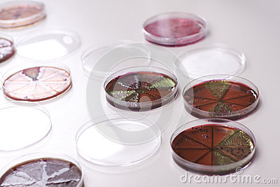 Petri dishes with bacteria