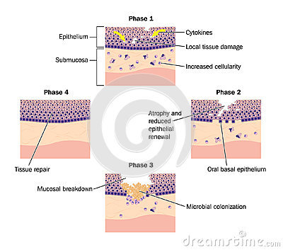 Phases of epithelial repair