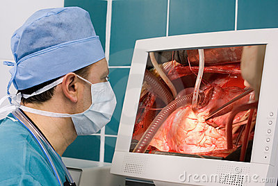 Physician watching operation