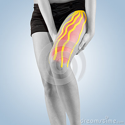 Free Physiotherapy Treatment With Therapeutic Tape For Leg Pain. Stock Photography - 45454872